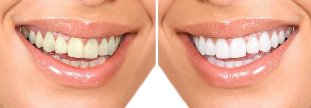blanqueamiento-dental.jpg
