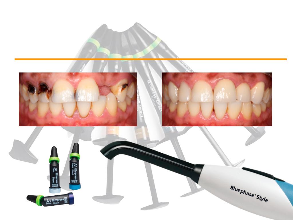 restauracion-dental.jpg